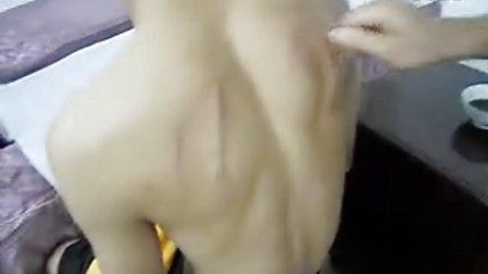 揪痧录像6