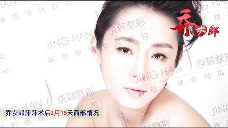 面部精雕术后效果,恢复期脸部变化展示