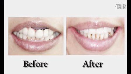 新当代高压氧植牙中心 All on 6 上颚快速植牙