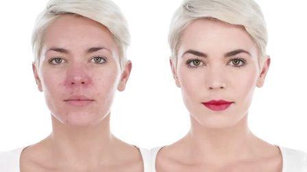 Lisa Eldridge针对红血丝和面部痤疮的化妆教程