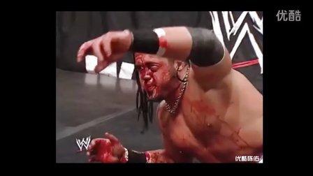 WWE失误意外毁容一幕