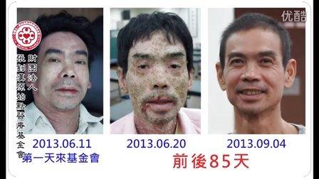 原始点疗法:三十年牛皮癣皮肤病(银屑病/湿疹)根治(超清)