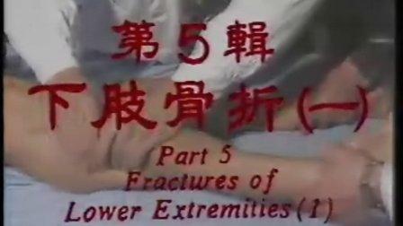 中国骨伤科学(15辑)05下肢骨折一