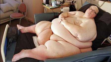 第59期 震惊!世界上最胖的男人