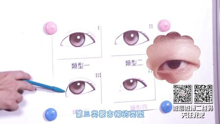 十万个整么办 第一季 羡慕别人的双眼皮大眼睛,神奇开眼角,无神小眼睛