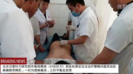 江苏兴化针刀许振南教授三针平衡治疗腰椎间盘突出症麻痛侧弯畸形