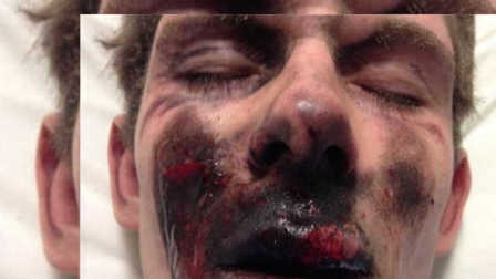 表蛋疼 2016:香烟突然爆炸 抽烟男子被震成耳鸣听力下降 408        8.6