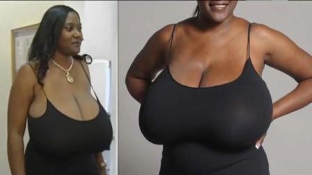 女子天生巨乳36NNN罩杯,通过手术成功缩胸成36DD罩杯