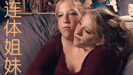 【表蛋疼】美国连体姐妹生活揭秘 欲结婚生子一辈子在一起