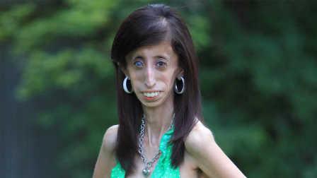 骷髅女孩!我很丑但有一颗勇敢的心【寰球大百科150】
