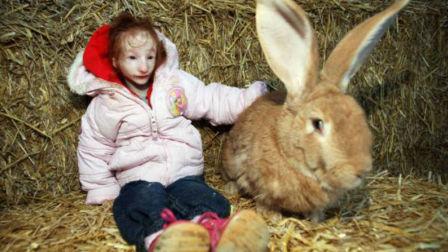 现实版拇指姑娘 14岁比兔子还小