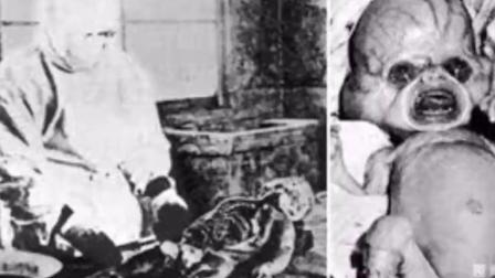太残暴! ! 日本731部队恐怖畸形人体病毒实验照片流出! ! 令人发指! ! !