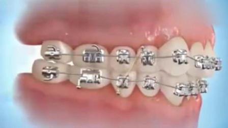 牙套是怎么矫正牙齿的? 多年的困惑终于明白了