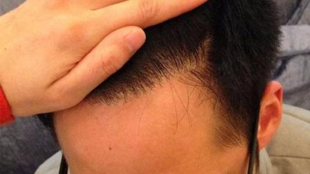 老是掉头发怎么办? 别担心, 试试这4种不用吃药就能防治掉发的妙方!