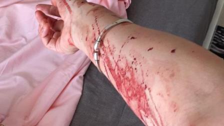 申通快递员入室殴打用户 手持石块入室将其击倒在床