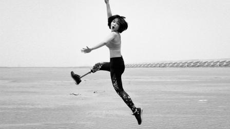 95后独腿女孩:我就要把假肢露出来 游泳健身 穿短裙 145