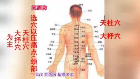 颈椎病 针灸按摩穴位治疗
