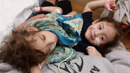 连体姐妹分离手术成功 各自只有一条腿