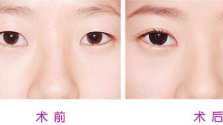 开外眼角管用吗 能使眼睛变大吗 这可能是个误区
