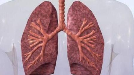 肺部结节是得了肺癌吗? 几种妙招判断方法不能忽视!