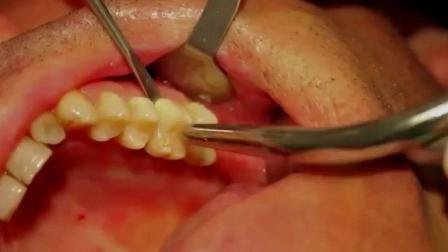 实拍牙齿碎片拔出的过程!