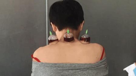 颈椎病的中医针灸刺血疗法调理方法
