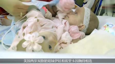 可爱连体姐妹实施分离手术, 每人一条腿只能爬行
