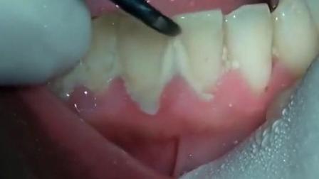 实拍两年的白色牙垢和牙结石被洗掉!