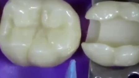 实拍蛀牙被修补之前的样子, 看看你有没有?