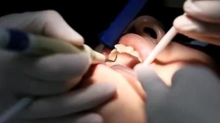 这样洗牙, 不会破坏牙釉质, 实拍对照!
