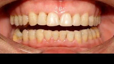 实拍前后对比37岁男人牙齿龅牙, 深覆合做牙齿矫正!