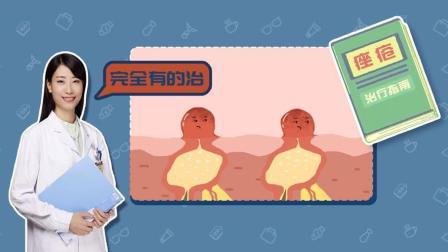 祛痘要分男女吗? 快听北京协和皮肤科医生怎么讲 67