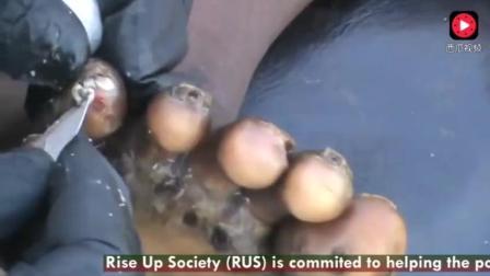 非洲美丽的小姑娘手脚感染沙蚤