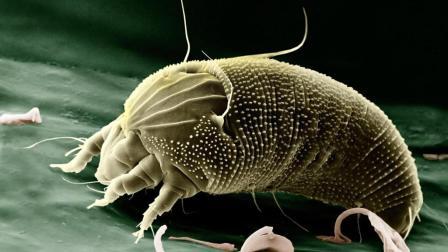 用专业仪器告诉你 你的家里到底有多少螨虫的危害