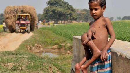 男孩腹部长出寄生体 被当地人称为神明在世膜拜