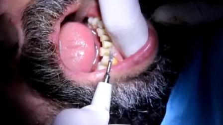 重度吸烟男子人生洗牙, 很多牙垢, 诊所弥漫着尼古丁味道!