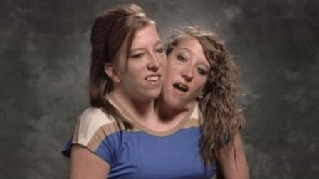 生命的伟大! 实拍世界最罕见的双头姐妹