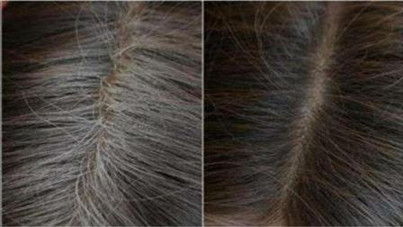 洗头时水里加点它, 白发自然变黑发, 再也不用花钱去染发了