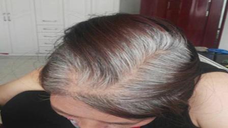 """它是白发的""""死对头"""", 常吃白发慢慢变黑"""