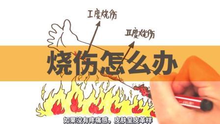 必备急救常识: 烧伤怎么办