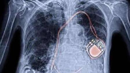 新形电池植入心脏跳动百年?
