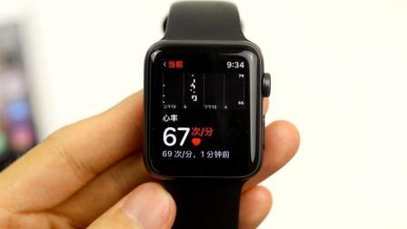 Apple Watch 说我的心脏出问题了