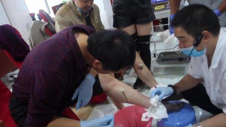 姿势很重要, 听说这样才能学好刺血疗法!