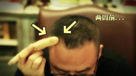 拯救杨幂尴尬的发际线, 离不开植发!