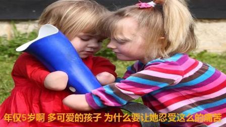 共同经历截肢的2个小美女, 第一次见面情同姐妹, 相互鼓励十分感人