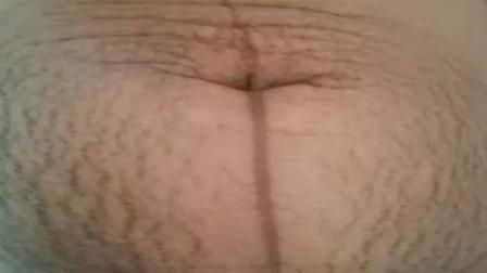 孕产: 孕期肚子上有条难看的黑纹, 妊娠线淡化方法在这里!