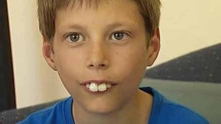 男孩被同学嘲笑牙齿大! 手术后被女生狂追, 成人生赢家