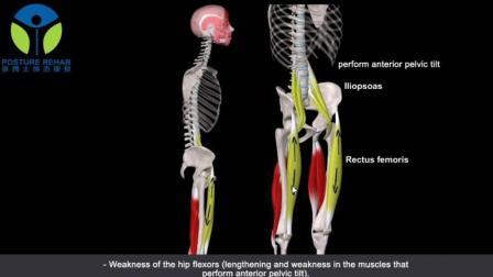 3D动画课堂|矫正腰椎曲度减小第2集: 腰椎曲度减小时肌肉的变化