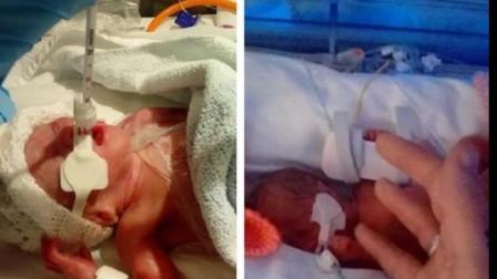 女子怀上龙凤胎 26周早产加起来才两斤多