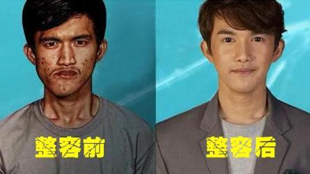 男子因为太丑自卑到不敢和人交流, 韩国整容节目用了3个月, 把他变成了明星